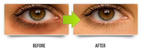 Remove Lines And Circles Around Your Eyes